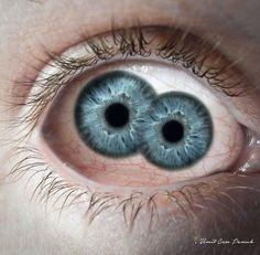Double Pupil By Umit Cem Pamuk by umitpamuk.deviantart.com on @DeviantArt