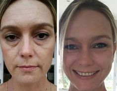 Yoga For The Face And Neck Techniques: Look More Youthful And Obtain A Holistic Facelift With Face Rubbing Gymnastics