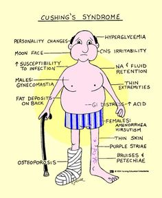 Cushing's Syndrome signs and symptoms.
