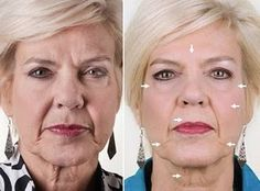 How to employ your own fingertips to various acupressure points on the face and neck to give yourself a non-surgical facelift. Face Yoga is the ultimate facial toning exercises system to look younger Do Facial Exercises Work, Face Exercises, Galvanic Facial, Galvanic Spa, Nu Skin, Beauty Guide, Beauty Hacks, Diy Beauty, Facelift Without Surgery