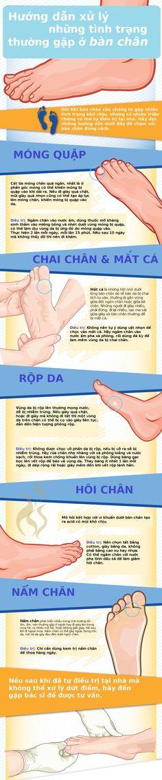 Hướng dẫn xử lý các triệu chứng thường gặp ở bàn chân nam giới
