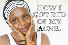 How I Got Rid Of My Acne&Pimples USING Affordable Products Thank U So Much, Acne And Pimples, Rid, Skin Care, Beauty, Products, Cosmetology, Skincare, Skin Treatments