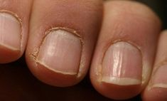 With this appearance your nails alarm that it's time to see a doctor. White spots on the nails may indicate on warts and fungus (onychomycosis) or psoria. Cuticle Care, Nail Care, Wart On Finger, Dark Elbows, Brittle Nails, Healthy Nails, Healthy Food, Warts, Us Nails