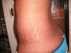 Fast Secrets # http://fastsecrets-clubs.com/stretch-marks-cause-and-treatment-options/