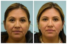 This Hispanic woman is shown before and two weeks after two syringes of fillers placed around her eyes and her jawline. Facial Fillers, Dermal Fillers, Hyaluronic Acid Fillers, Botox Before And After, Botox Cosmetic, Hispanic Women, Skin Resurfacing, Facial Rejuvenation, Botox Injections