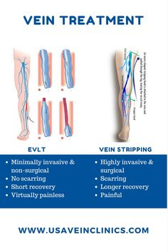 In the past the only difference to get rid of varicose veins was a surgical treatment called vein stripping. At USA Vein Clinics we use the latest, FDA approved, minimally invasive and non-surgical treatment for varicose veins called Endovenous Laser Therapy (EVLT) during which the diseased vein is sealed shut and the symptoms gradually disappear.