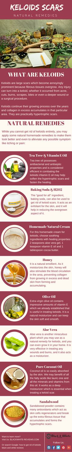 How to Get Rid of Keloids: 21 Most Used Remedies For Scars Removal Keloids scars treatment. How to get rid of them with home remedy. Hormonal Acne Remedies, Scar Remedies, Psoriasis Remedies, Home Remedies For Acne, Natural Home Remedies, Pimples Remedies, Pimple Scars, Psoriasis Diet, Acne Face Wash