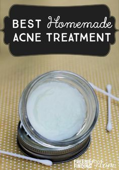 Best Homemade Acne Treatment - Do you suffer from acne? This natural remedy for acne not only zaps zits quickly, but it also soothes and moisturizes the skin. Next time you suffer from a breakout, skip those drugstore products loaded with chemicals and unnatural ingredients and opt to make this homemade acne spot treatment.