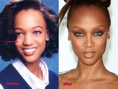 Tyra Banks before and after plastic surgery.