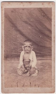 CDV- human oddity THE HAIRY FAMILY OF BURMA – GIRL [Barnum]