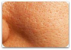 Poros dilatados tratamiento natural
