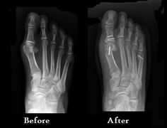 Before and after pictures of bunion and tailor's bunion surgery