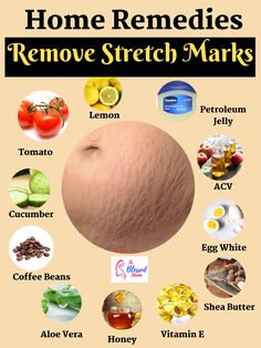 There is no permanent way to get rid of stretch marks, however you can make them fade away. In this article we have discussed about some home remedies, which are totally safe and using them will make your stretch marks lighten. Beauty Tips Home Remedy, Natural Beauty Remedies, Health And Beauty Tips, Health Tips, Diy Beauty, Stretch Mark Remedies, Stretch Mark Removal, How To Get Rid Of Stretch Marks, Stretch Mark Treatment