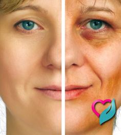 Home Remedies for Age Spots on Face