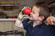 Feitas em impressora 3D, maos robóticas ajudam crianças com deficiência http://www.bluebus.com.br/feitas-em-impressora-3d-maos-roboticas-ajudam-criancas-deficientes/