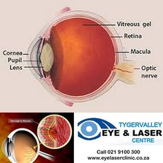 What Is Diabetic Eye Disease? Diabetic eye disease is a term for several eye problems that can all result from diabetes. Diabetic eye disease includes: diabetic retinopathy diabetic macular edema cataract and glaucoma. Signs Of Diabetes, Types Of Diabetes, Diabetic Eye Disease, Cerebral Circulation, Corneal Ulcer, Vitreous Humour, Intracranial Pressure, Diabetic Retinopathy