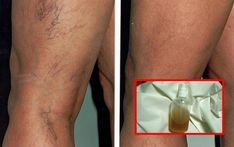 Natural Remedies For Varicose Veins 4 Herbal Recipes For Successful Treatment Of Capillaries And Veins! Foot Remedies, Health Remedies, Natural Remedies, Varicose Vein Remedy, Varicose Veins, Healthy Exercise, Health Magazine, Healthy Tips, Health And Wellness