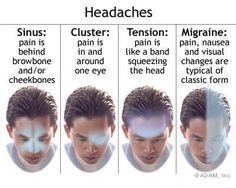 headache in back of head