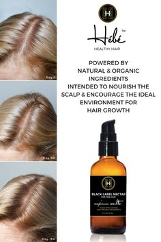 Natural + Organic + Hair Product for Hair Thinning and Loss + Hair + Dry Shampoo + Treatment + Solution + Grow + Regrow
