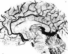 Salamon's Neuroanatomy and Neurovasculature Web-Atlas Resource