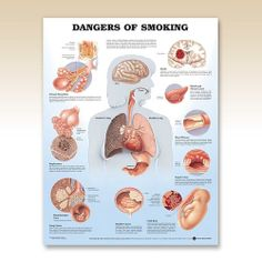 PULMONOLOGY - Dangers of Smoking Anatomy Poster discusses and illustrates chronic bronchitis, emphysema, lung cancer, bladder cancer, stroke, mouth and throat cancer, heart disease, gastric ulcer, and fetal risk.