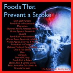 A stroke is an interruption of blood flow to a portion of the brain, caused by blockage or opening of an artery or blood vessel. Depending on the area of the brain that is affected, a stroke can cause cognitive problems, physical impairment or difficulty speaking. The food we eat plays a significant role in the risk factors and can even facilitate the body's ability to heal after a stroke.