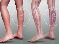 There is not a woman on Earth that doesn't hate varicose veins because they make the legs very unattractive. They are also painful and uncomfortable. We know a natural way to get rid of varicose veins Varicose Vein Removal, Varicose Vein Remedy, Varicose Veins Treatment, Natural Solutions, How To Remove, How To Make, Health Remedies, Natural Remedies, Health Tips