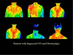 Patients with Chronic fatigue syndrome and Fibromyalgia. I can only imagine how intense a scan of me would be!