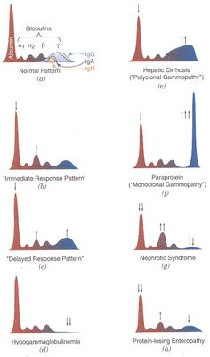 normal serum protein electrophoresis - Google Search