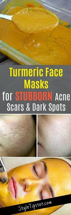 Skin Remedies Turmeric Face Masks - These turmeric face masks serve to cure a multitude of problems including acne, but focus more on eradicating stubborn acne scars and dark spots. Turmeric Face Mask Acne, Acne Face Mask, Aloe Vera Face Mask, Belleza Diy, Tips Belleza, Looks Party, Homemade Face Masks, Homemade Facial Scrubs, Facial Diy