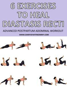 6 Exercises to Fix & Heal Diastasis Recti Post Baby Workout, Post Pregnancy Workout, Mommy Workout, Workout Diary, Pooch Workout, Fat Workout, Workout Tanks, Workout Fitness, Healing Diastasis Recti