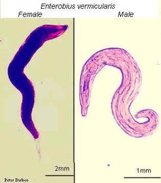 Male and female pinworms  Enterobius vermicularis (pinworms): Diagnosis by tape preparation in ova or adult stage. Disease names: enterobiasis/ pinworm infection. Pathology and symptoms: vomiting, nausea, itching, autoreinfection, loss of sleep. Treatment: mebendazole, pyrantel pamoate, warm water enemas (whole house). Worldwide distribution.