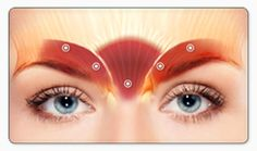 Just five tiny injections into the frown lines - helps to lift and smooth wrinkles - open the eyes for a fresh wide eyed effect - anti-ageing - while Botox is active it presses PAUSE on the ageing process. by drjaneleonard Botox Injection Sites, Botox Injections, Botox Fillers, Dermal Fillers, Face Wrinkles, Prevent Wrinkles, Wrinkle Between Eyebrows, Botox Lips, Eyebrow Lift