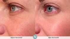 Nerium AD Real Results!! Become a Preferred Customer at www.kellimar.nerium.com