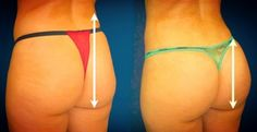 The glutes respond especially well to toning exercises, so if you want a bigger, fuller, lifted butt, the moves in this workout can make a big difference.
