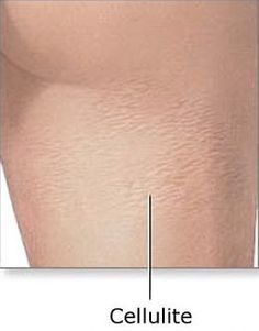 """How To Get Rid Of Cellulite On Legs Cellulite commonly appears on the hips, buttocks and legs, but is not caused by being overweight, as to the results that mesotherapy gets with cellulite. MesoSculpting """"The New Liposuction"""" Mesosculpting is the answer to the question that so many people have been asking: Is it possible to get rid of … Retrieve Doc www.gettingridcellulite.org/how-to-get-rid-of-cellulite-on-legs.html"""