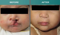 From Soni Clinic, People from all over the world can easily get the best and cost effective Cleft Lip and Palate surgery. We aim to provide the painless and quality treatments at a very reasonable cost. Hair Transplant In India, Hair Transplant Surgery, Orthognathic Surgery, Hair Fall Solution, Surgery Doctor, Cleft Lip, Nose Surgery, Rhinoplasty