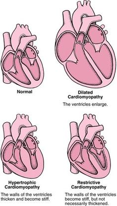 Cardiomyopathy can be caused by many disorders, or it may have no identifiable cause. The main types of cardiomyopathy—which may overlap—are dilated, hypertrophic, and restrictive. Cardiomyopathies often cause symptoms of heart failure. Hypertrophic Cardiomyopathy, Dilated Cardiomyopathy, Cardiac Sonography, Interventional Cardiology, Chd Awareness, Cardiac Nursing, Nursing School Notes, Nursing Tips, Medical Assistant