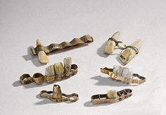 'The Etruscans, who predated the Romans, practiced making dentures and implants as early as the 7th century BCE.  They used gold wires, gold strips, and gold rivets in their intricate dentistry.' Sheva Apelbaum False teeth made by the Etruscans.