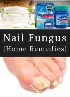 Home Remedies For Toenail Fungus :  mix 1/4 c Listerine (any kind but I like the blue), 1/4 c apple cider vinegar and 1/2 c of warm water and then soaked my feet for 10 minutes..