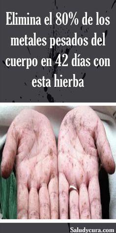 artroza simptomelor articulației degetului acid anti peptid ciclic citrulinat
