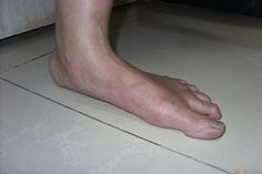 Arch pain is a common foot problem known as flat feet, it occurs in people with fallen arches. Foot Centers of NC doctor's treatment can relieve your arch pain. Plantar Fasciitis Treatment, Plantar Fasciitis Shoes, Heel Pain, Foot Pain, Edema, Ballet Feet, Podiatry, Sore Feet, Repetitive Strain Injury
