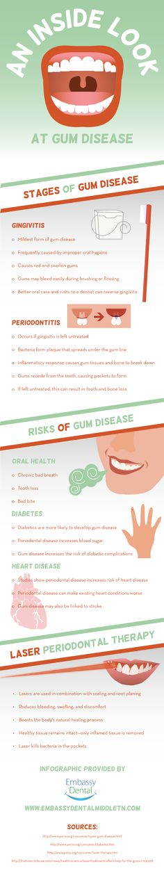 Did you know that gum disease can cause chronic bad breath tooth loss or a bad bite? Learn more about gum disease by taking a look at this infographic from a family dentist in Nashville. Dental Health, Oral Health, Dental Care, Chronic Bad Breath, Dental Facts, How To Prevent Cavities, Teeth Cleaning, Dentistry, Nashville