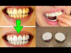 Guaranteed Teeth Whitening In Less Than 2 Minutes! Teeth Whitening Remedies, Natural Teeth Whitening, Natural Toothpaste, Homemade Toothpaste, Teeth Health, Oral Health, Men Health, Dental Health, Health Care