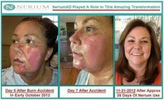 REALL results! See why CBS rated this product as incredible!!! www.californiabeautiful.nerium.com