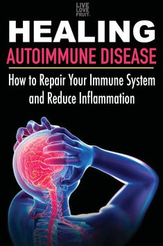 Hypothyroidism Diet - Healing Autoimmune Disease: How To Repair Your Immune System and Reduce Inflammation - The Healthy Thyrotropin levels and risk of fatal coronary heart disease: the HUNT study. Arthritis Hands, Arthritis Remedies, Rheumatoid Arthritis Diet, Health Remedies, Natural Cure For Arthritis, Natural Cures, Natural Healing, Natural Treatments, Natural Remedies