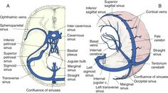 Dual venous sinuses