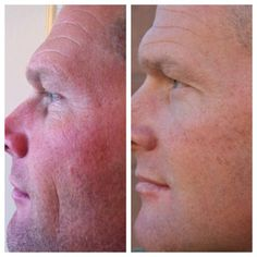 Great NeriumAD result pic. His tone. His texture. Unreal. This product is AMAZING!   stay4everyoung.nerium.com