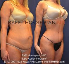 Before & After of Dr. Raffi Hovsepian's Body Transformation (Lipo-Abdominoplasty) on a 41 year old mother. For more information visit: www.RHMD.com / (310)-999-1003. #DrRaffiHovsepian #RaffiHovsepianMD #DrHovsepian #Beverlyhillsplasticsurgery #MommyMakeover #TummyTuck #Liposuction #PlasticSurgery #BeverlyHillstummytuck #abdominoplasty #plasticsurgery #lipoabdominoplasty #cosmeticsurgery #LosAngelesLiposuction #LosAngleseTummyTuck #Motherhood #Mommy