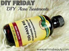 Erinn's Beauty Blog: DIY Friday: DIY Acne Treatments Diy Acne, Trees Oil, Acne Treatments, Diy Friday, Beauty Blogs, Teas Trees, Beautiful Blog, All Natural Acne Treatment, Erinn Beautiful